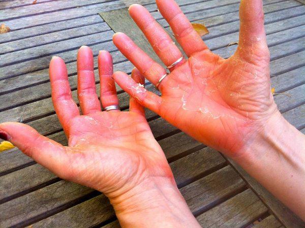 dermatit-na-rukah